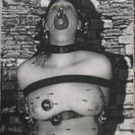 Disfigurement